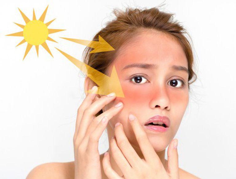 Da treatment cần bôi kem chống nắng nhiều hơn