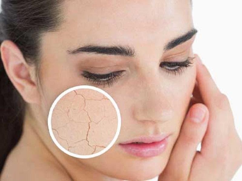 những loại KCN phổ rộng tốt cho da khô treatment