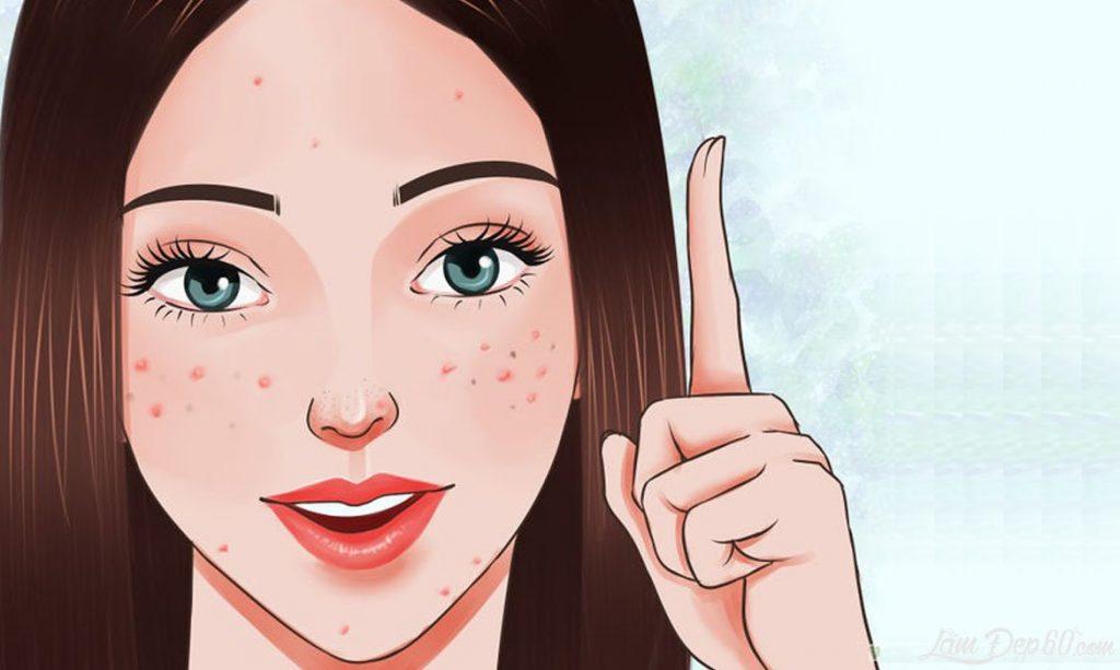 những loại KCN phổ rộng tốt cho da mụn treatment