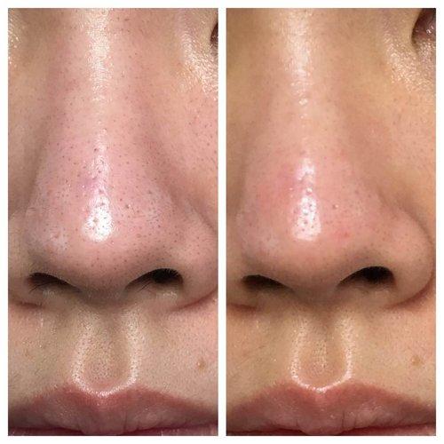 review serum retinol SkinCeuticals 0,3-0,5-1%